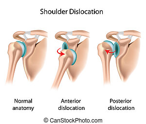 Types of shoulder joint dislocation