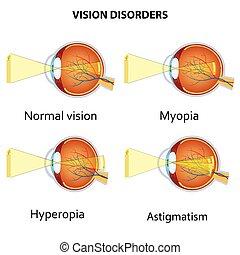 disorders., comum, visão