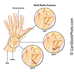distal radius fractures - medical illustration of the...