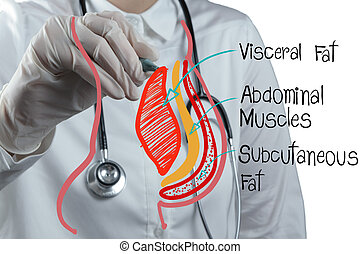 doctor draws abdominal fat as medical concept