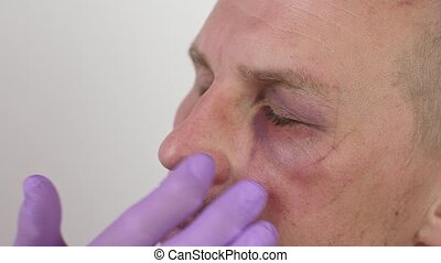 Doctor examines bruise under the eye