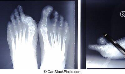 doctor examining foot on x-ray film