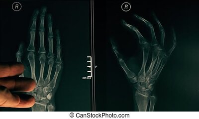 Doctor explaining x-ray image of a hand to a patient. 4K...