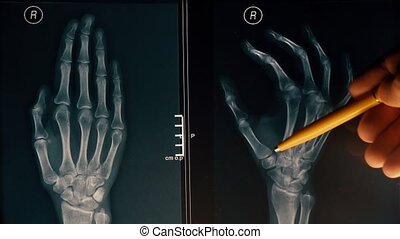 Doctor explains xray image of a hand to a patient