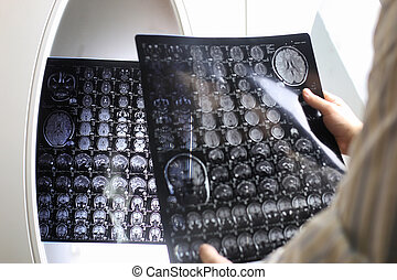 Doctor holding a picture of a brain MRI workflow in...
