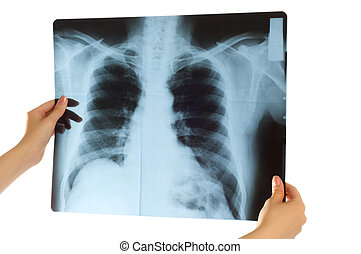 Doctor looking at x-ray image on white