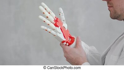 Doctor orthopedist conducts tests of robotic prosthetic hand...