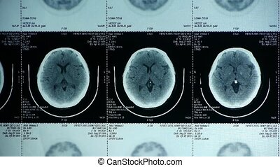 doctor study head pet/ct scan for a