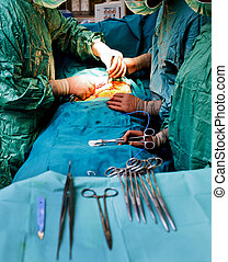 Doctors during cardiac surgery - Doctors with medical...