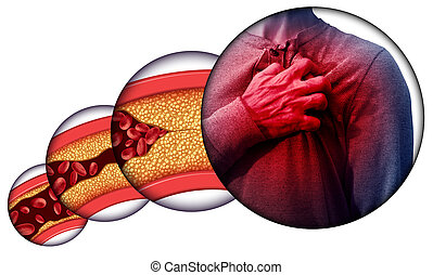 doença coração, human