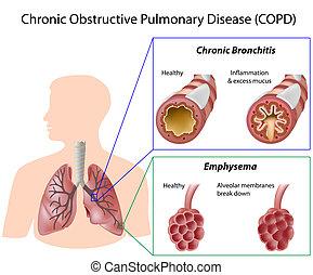 doença, pulmão, eps8