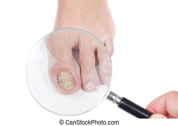 doktor, dermatologist, ransage, den, negl, på, den, tilstedeværelse, i, den, fungus, eczema., close-up.