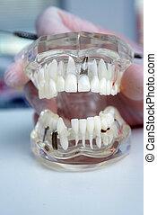 doktor, orthodontist, hält, in, seine, hand, a, modell, von, z�hne, mit, implantate