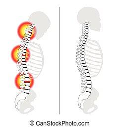dolor, slipped, espina dorsal, espalda, disco, prolapso