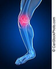 doloroso, articulação joelho
