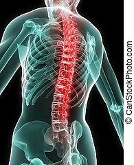 doloroso, espina dorsal