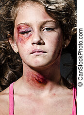Domestic violence - Injured child posing as victim of ...