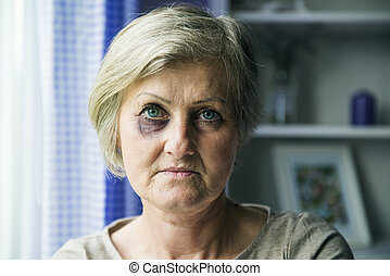 Domestic violence - Senior woman with black eye is victim of...