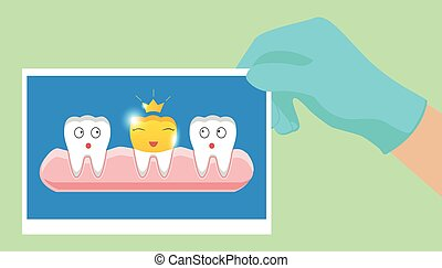 doré, style, dentaire, couronne, dent, fond, blanc, dessin animé, icône