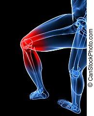 douloureux, genou, illustration