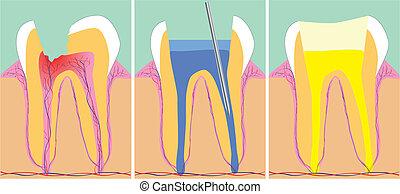 drie, fase, van, tandheelkunde, vector, illustratie