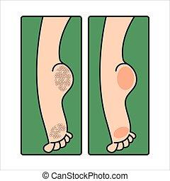 Dry cracked female feet