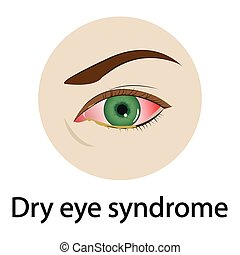 Dry eye syndrome. Vector illustration. - Dry eye syndrome....