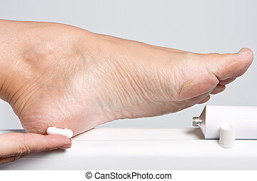 Dry feet - Female hands treating dry feet with moisturizing...