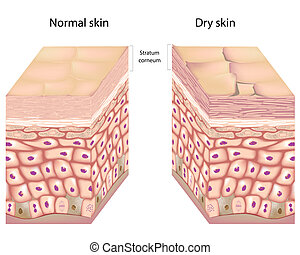Anatomy of human epidermis with stratum corneum flaking off in dry skin