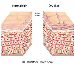 Dry skin, eps8 - Anatomy of human epidermis with stratum...