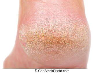 Dry skin on heel - Close up photo of a person with dry skin...