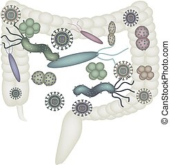 Dysbacteriosis of the intestine. Colon. dysbiosis of colon. Bacteria, fungi, viruses. Infographics. Vector illustration on isolated background