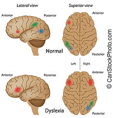 Dyslexia, eps10 - Human brain anatomy, lateral and view from...