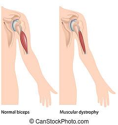 dystrophie, eps10, muskulös