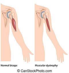 dystrophy, eps10, muskularny