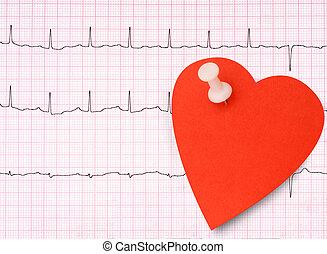 ecg, 心電圖, 細節, 健康的心, 概念, 等等, 由于, 黏性, note.