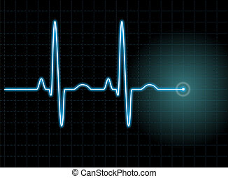 ECG #1 - Illustration of an electrocardiogram (ECG) #1. See...
