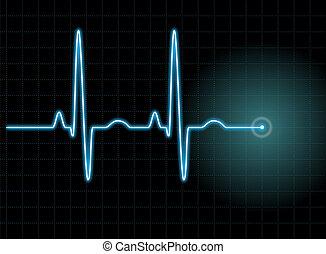 ECG #1 - Illustration of an electrocardiogram (ECG) #1. See...