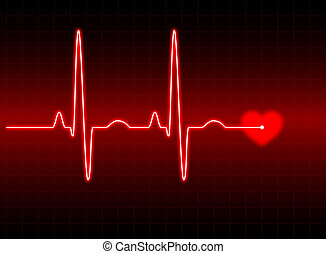 ECG #2 - Illustration of an electrocardiogram (ECG) #2. See...