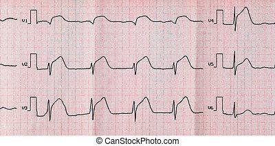ecg, aigu, myocardique, période, infarctus, répandu, ...
