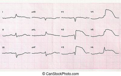 ecg, akut, myokardial, periode, infarkt, macrofocal,...