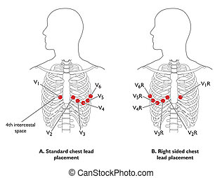 ECG chest leads - Position of ECG chest leads - labeled