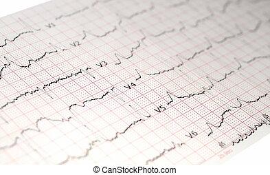 ecg, ekg, wykres, elektrokardiogram