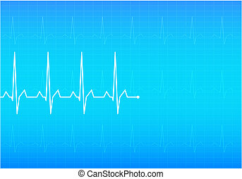 ECG Electrocardiogram, vector
