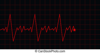 ecg, electrocardiograma