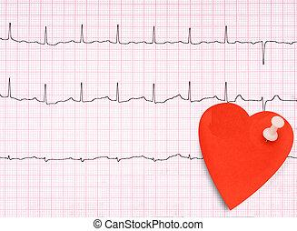 ecg, elektrokardiogramm, detail, gesundes herz, begriff, usw, mit, klein, note.