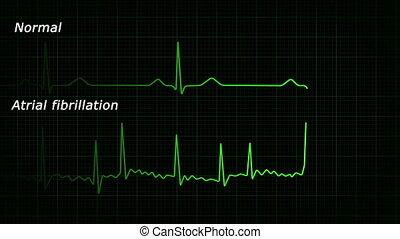 ecg, fibrillatie, atrial, hd, lus