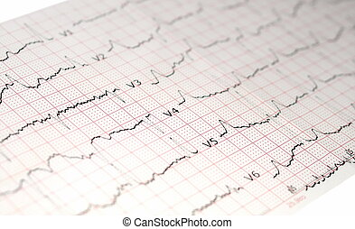 ecg, grafiek, elektrocardiogram, ekg