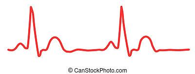 ECG graph