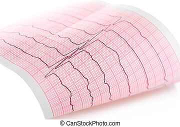 ecg, macro, cardiogram., gráfico